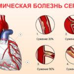 Ишемическая болезнь сердца: что необходимо знать?